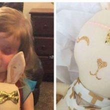 Έχασε το ματάκι της λόγω καρκίνου – Βρήκε τον εαυτό της χάρη σε μια κούκλα που της μοιάζει