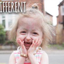 """Αυτή η 4χρονη είναι το μοναδικό παιδί στον κόσμο με το Σύνδρομο """"Μπέντζαμιν Μπάτον"""""""