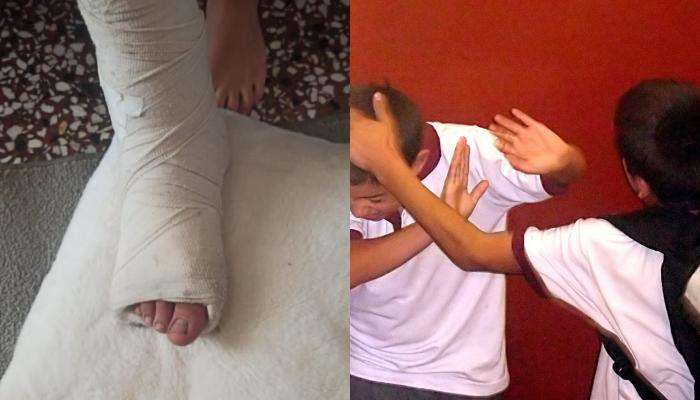 Σοκ στην Τροιζηνία: 13χρονος έπεσε θύμα άγριου bullying – Πώς βρέθηκε με σπασμένο πόδι